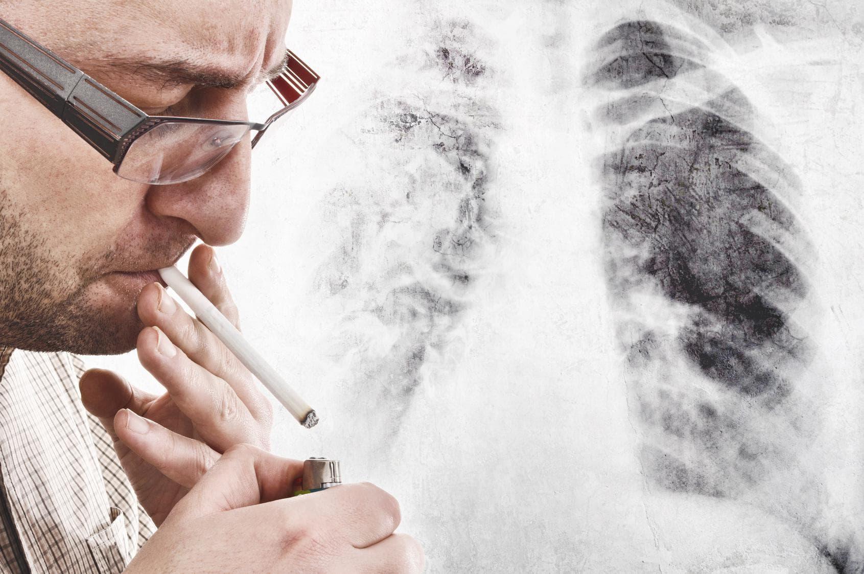 Лечение кашля курильщиков народными средствами