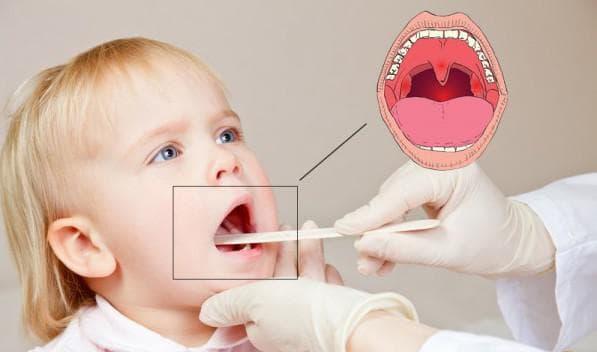 острый тонзиллит симптомы и лечение у детей