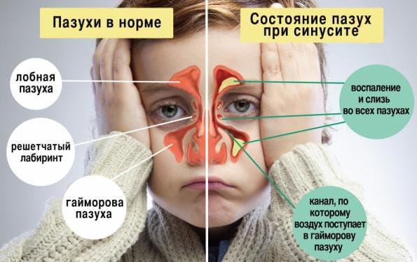 гайморит у ребенка симптомы и лечение
