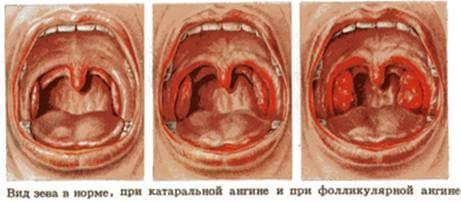 стрептококковой ангины в схеме