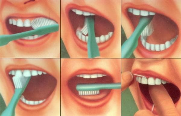 несоблюдение гигиены полости рта., что приводит к ангине