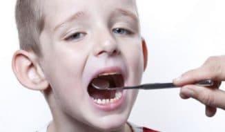 ларингит у детей и взрослых