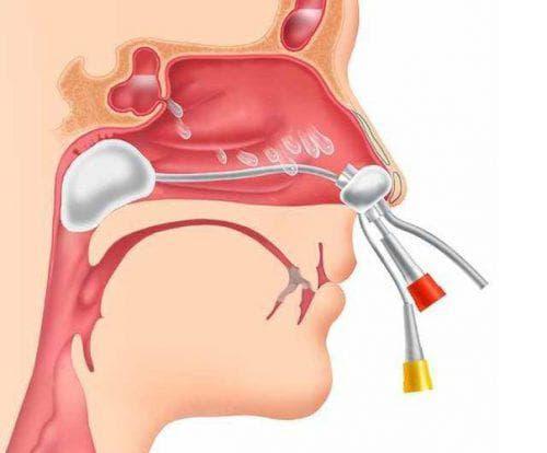 аденоидный синусит