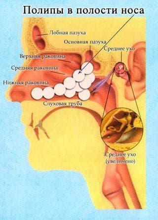 полипозный этмоидит