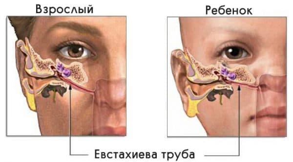 Нарушение функционирования евстахиевой трубы и среднего уха