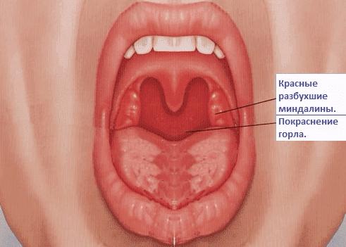 острый катаральный тонзиллит