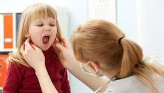 стоматит у детей на миндалинах фото