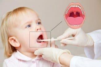 как лечить рыхлые миндалины у ребенка