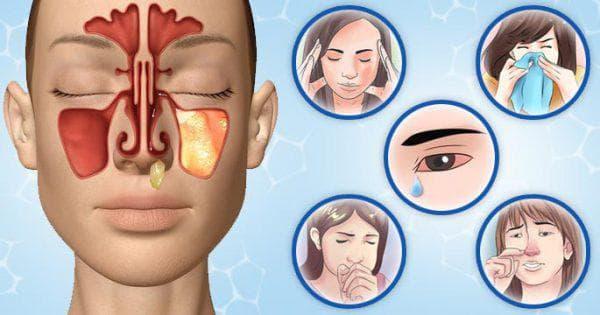 хронический одонтогенный синусит