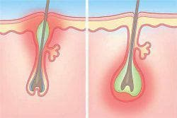 фурункул в носу стадия инфильтрации