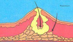 фурункул в носу стадия нагноения и некроза