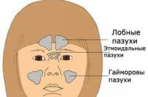 капли в нос при синусите и гайморите