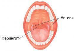 воспаление миндалин в горле у детей