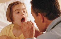 красное горло без температуры у ребенка