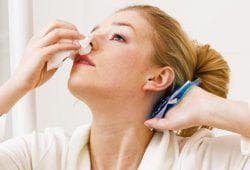 кровотечения носа