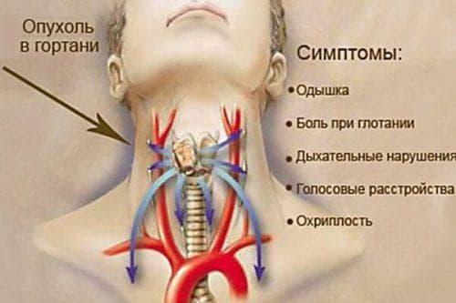Полипы в горле симптомы и лечение