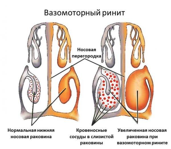 описание заболевания ренита