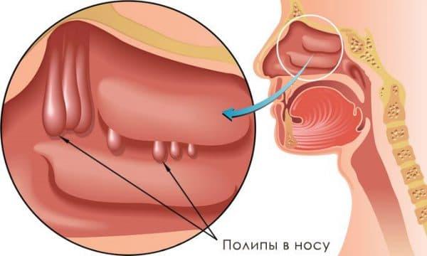 удаление гипертрофических образований в носу