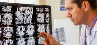 рентген черепа как проходит процедура