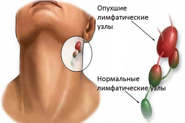 Лимфаденопатия