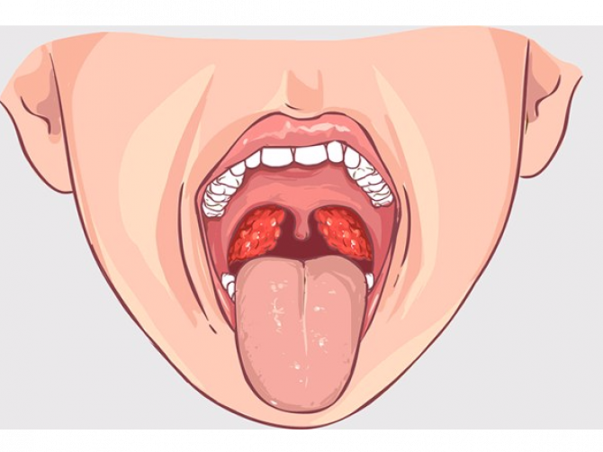 Хронический тонзиллит фарингит лечение