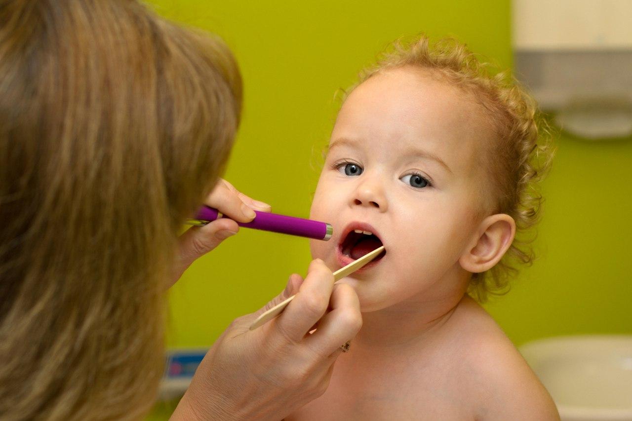 Герпетическая ангина у детей – лечение: 6 методов вылечить герпесную у ребенка