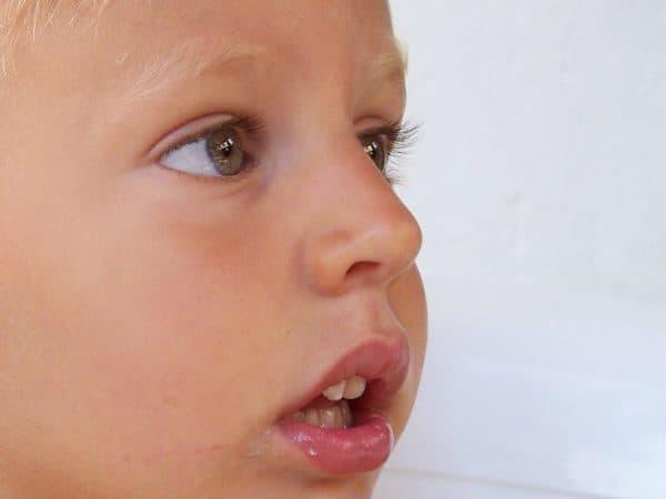 воспаление аденоидов у детей лечение
