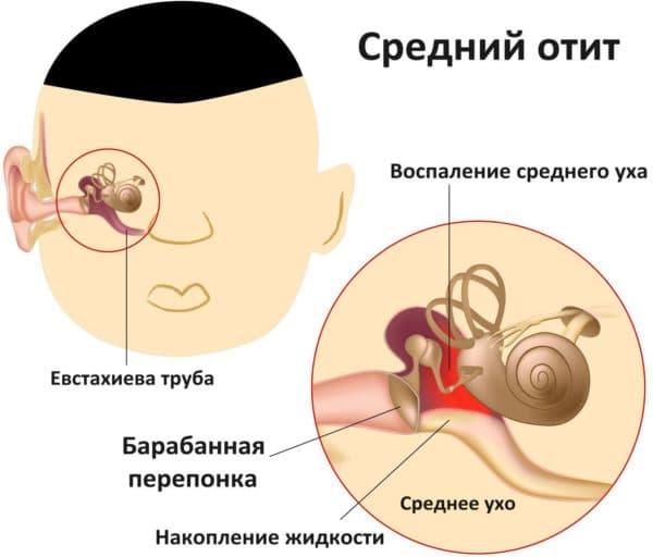 Диагноз средний отит у грудного ребенка