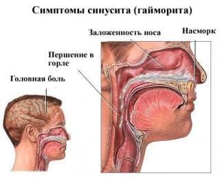 синусит носа симптомы