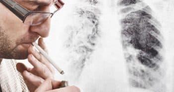 кашель курильщика как избавиться