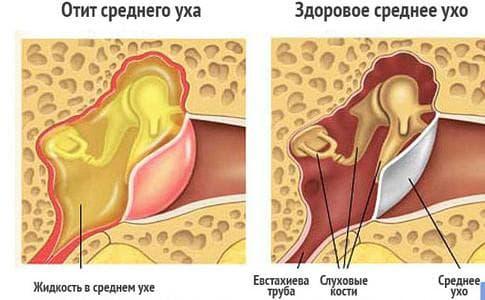 воспаление уха лечение в домашних условиях