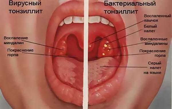 можно ли греть горло при ангине