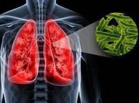 у взрослого туберкулёз