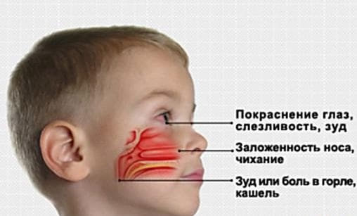 вазомоторный ринит у ребёнка