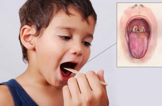 Стрептококковая инфекция горла