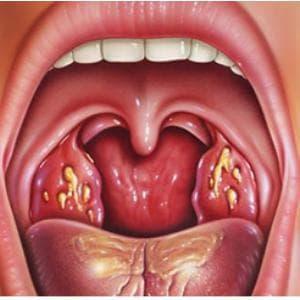 Инкубационный период у ангины