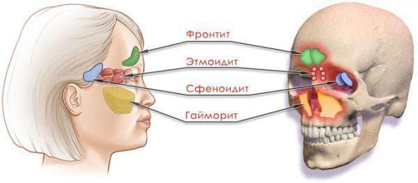 острая форма этмоидита