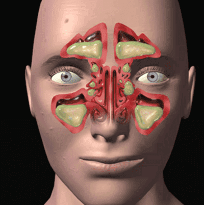 экссудативный фронтит