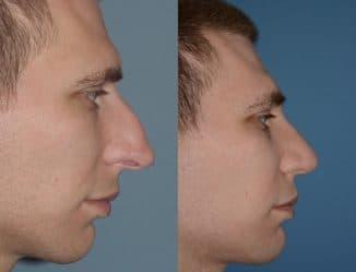 лазерная септопластиа до и после процедуры