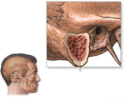 острый мастоидит