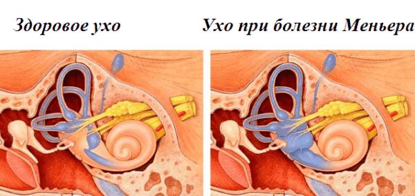классическая болезнь меньера