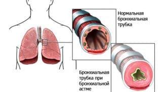 аллергический бронхит код по мкб 10
