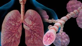 аллергический хронический трахеит