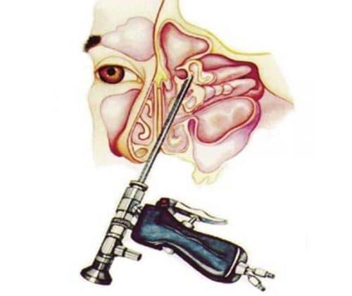вскрытие лобной пазухи с использованием эндоскопа