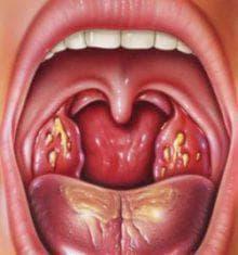 стоматит на миндалинах
