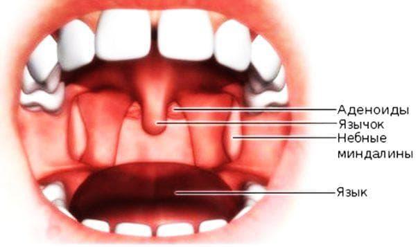 лечение кисты небной миндалины