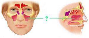 риногенный синусит