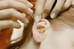 закапывание уха ребёнку