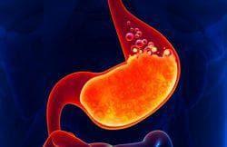 высокая кислотность желудка