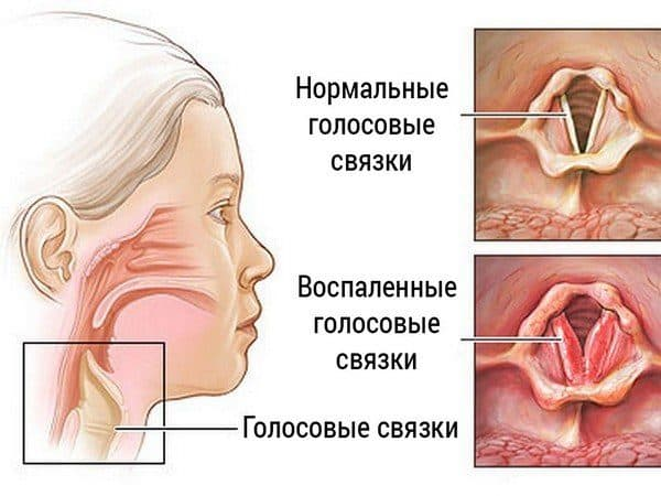 лечение пареза гортани